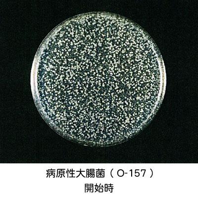 病原性大腸菌(O-157)